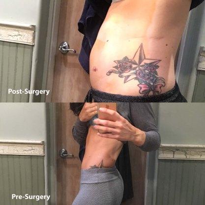 PrePostSurgery